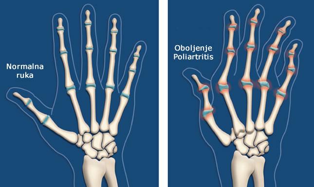 Poliartritis liječenje