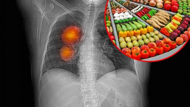 Rak-pluca-zdrava-hrana-voce-povrce-620x350