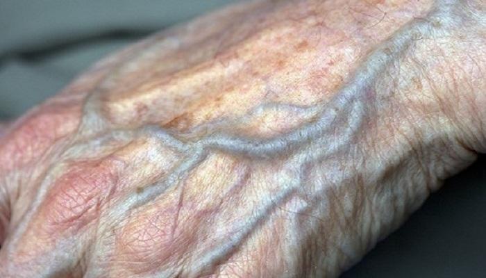 cirkulacija-stara-ruka