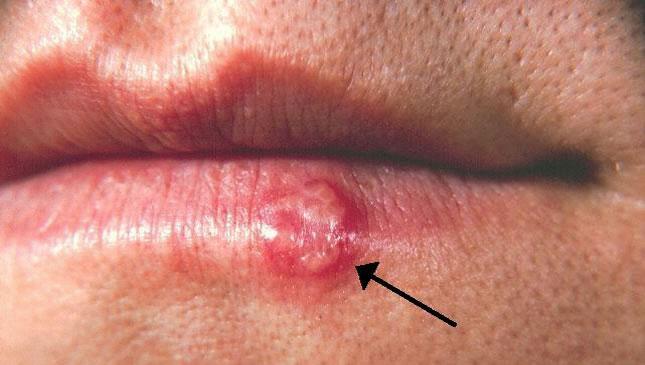 kako spriječiti herpes