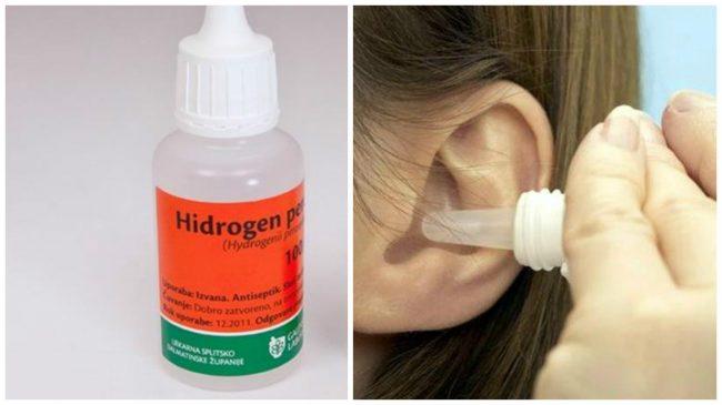 hidrogen-e
