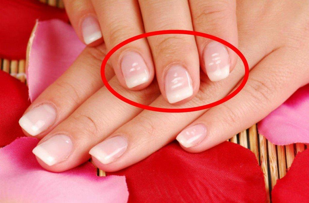 mrlje-nokti-bolest-noktiju
