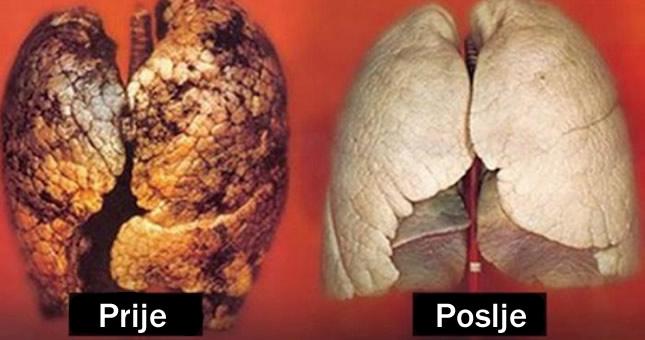 čišćenje pluća - detoksikacija pluća