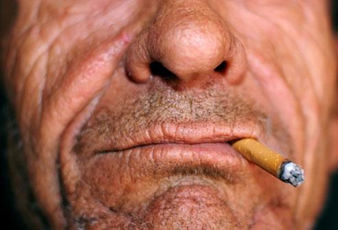 Pušenje jezika