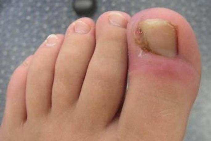 kako izvaditi urasli nokat